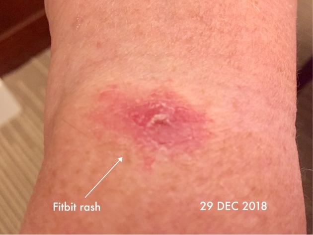 Fitbit rash | 29 DEC 2018 |